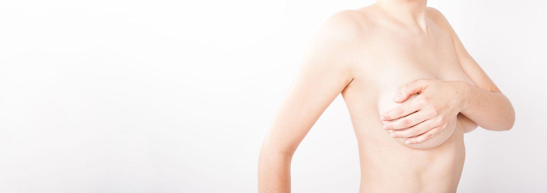 Körbchen brustverkleinerung b Nach Brustverkleinerung:
